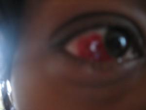 Good Eye Gone Bad